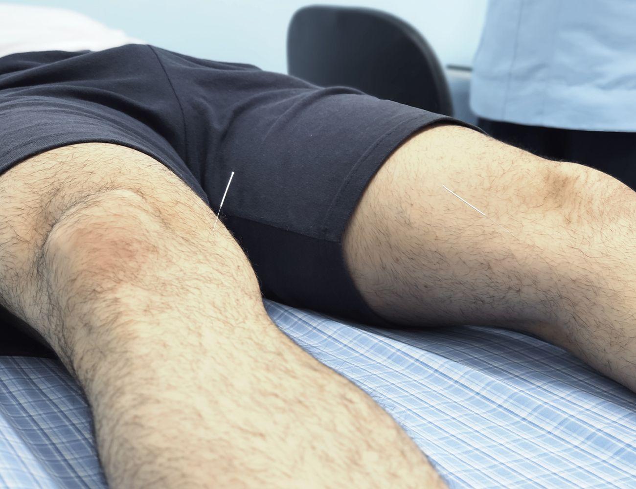 tratamiento con acupuntura para la infertilidad del hombre