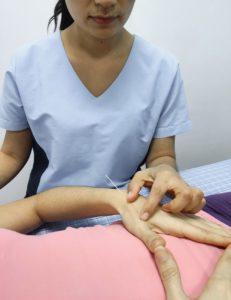 tratamiento de acupuntura para dismenorrea